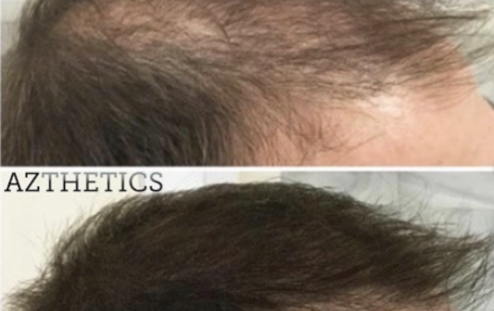 PRP training before and after