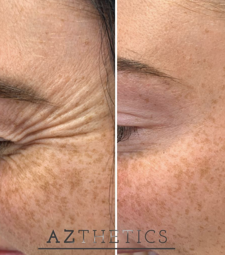 botox course, crows feet before and after