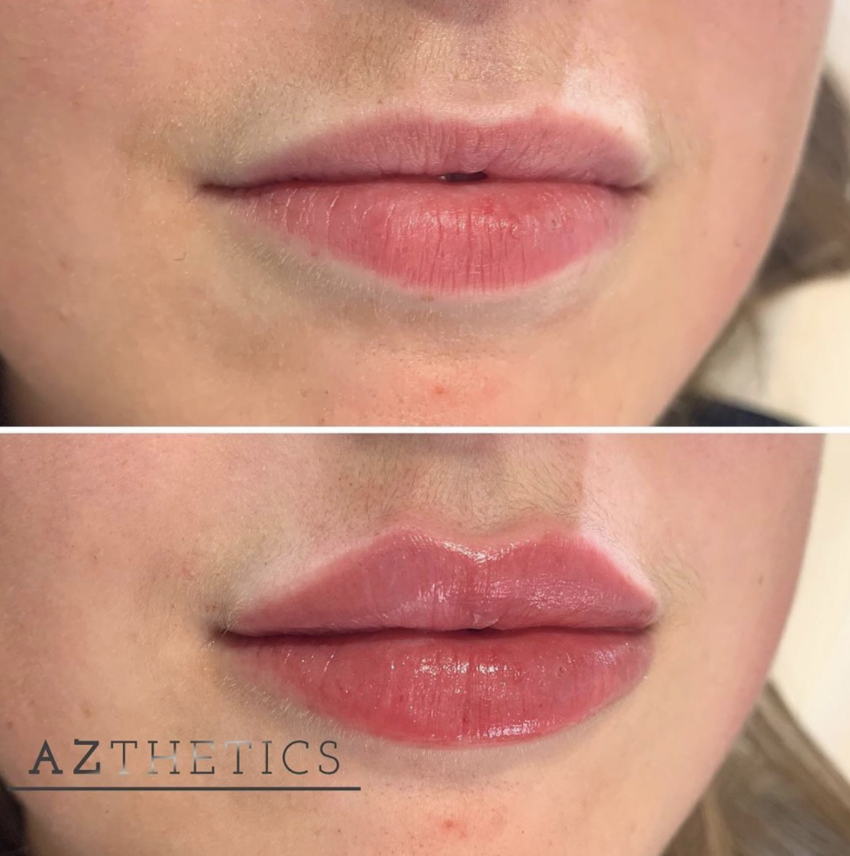 lip filler training, before and after