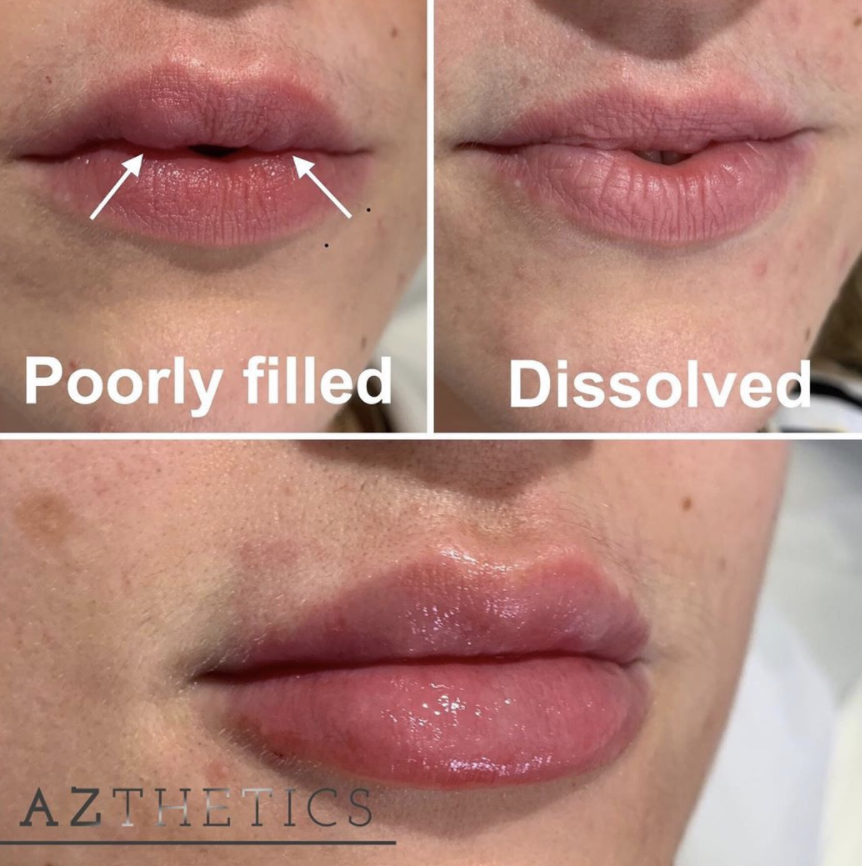 aesthetic complication before and after